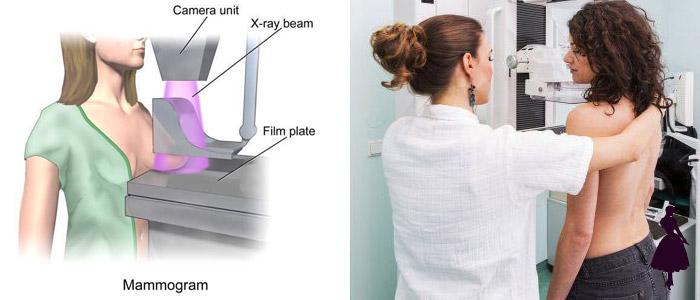 Mamografía examen