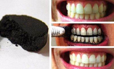 Carbón activado para los dientes